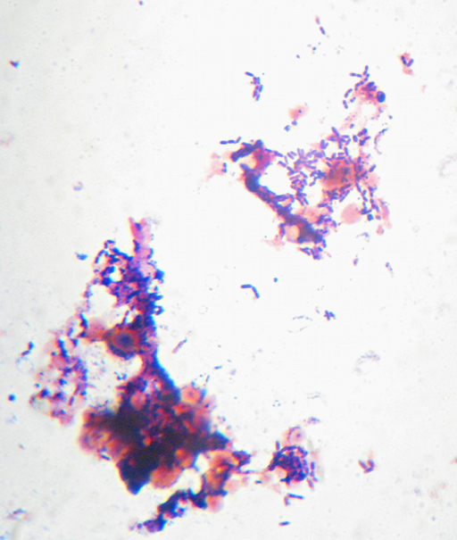 A Gram-stained view of yeasts and bacteria in a sourdough culture named 'Fred'.