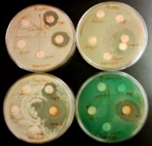 Petri dishes containing bacteria, showing inhibition of growth by certain substances